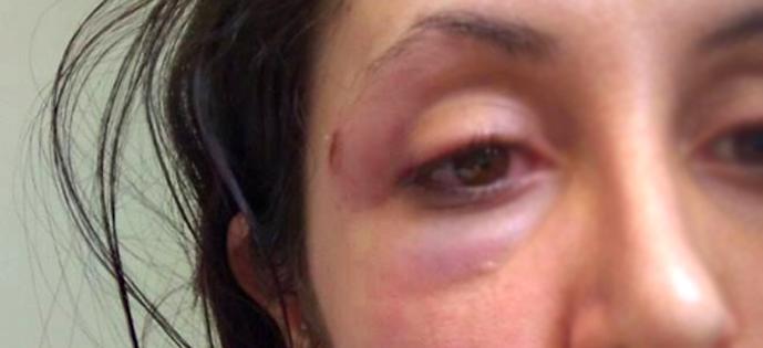 mulher agredida Violencia Intolerancia